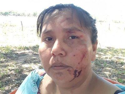 Líder indígena fue agredida por orden de otros caciques