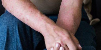 COVID-19: Descubren que el coronavirus también deja secuelas en la piel.