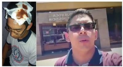 Estudiante golpeado por hurreros de intendente de Mayor Otaño afronta juicio oral