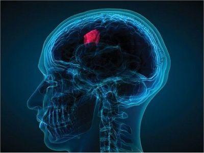 Descubren una nueva vía terapéutica contra el tumor cerebral más agresivo
