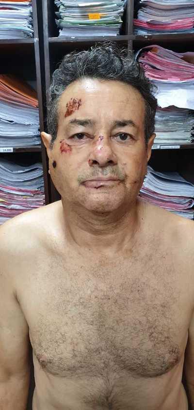 Brasileño herido durante enfrentamiento es un peligroso marginal con 14 antecedentes