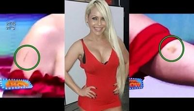 Perla fue agredida durante un show privado