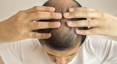 Caída del cabello puede ser una señal de una enfermedad hormonal o estrés