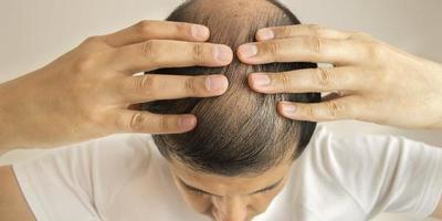 La caída del cabello puede ser de origen multifactorial y con tratamientos variados