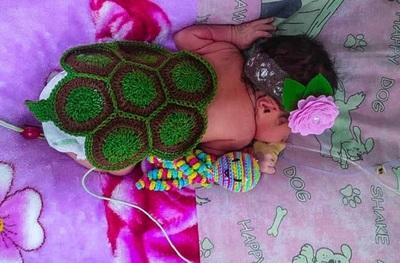Terapia neonatal: Tortuguitas acompañan el apego a la vida