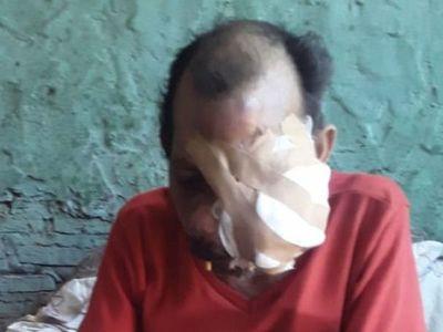 Hombre que lucha contra cáncer pide ayuda a la ciudadanía