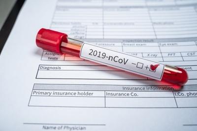 Uruguay superó por primera vez los mil casos activos de COVID-19
