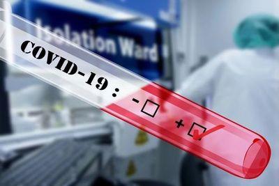 Salud reporta 16 fallecidos y 919 nuevos casos de coronavirus