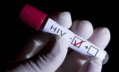 HOY / VIH: Una persona con carga viral indetectable no transmite el virus