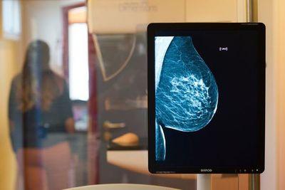 Una nueva droga para un tipo de cáncer de mama