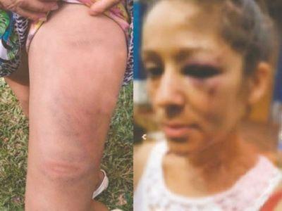 Mujer acusa a policía de molerle a golpes