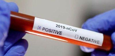 Covid-19: son 764 los nuevos casos confirmados