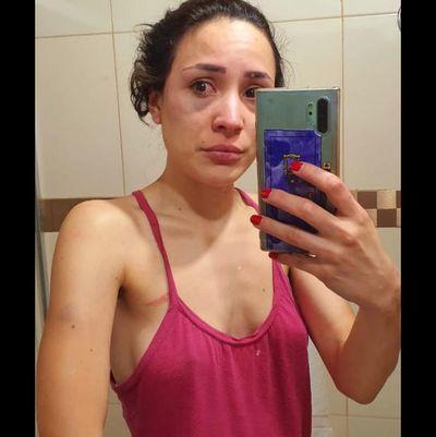 """Mujer denuncia que su pareja la golpeó brutalmente: """"Me dijeron que tengo suerte que no fueron a mi velorio"""""""