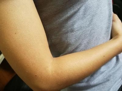 Conozca más acerca de los cuidados de la piel durante el verano