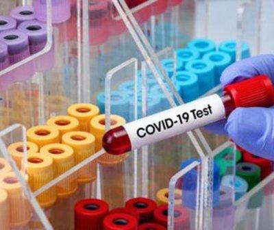 Informe COVID-19 de este viernes 15 de enero