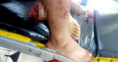 Arrolló a su amigo con su propio vehículo y le arrancó un pie