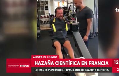 Paciente islandés recibió doble trasplante de brazos en Francia