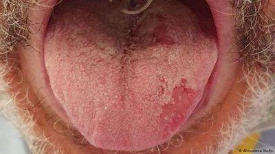Lengua Covid y otros síntomas del coronavirus en la piel