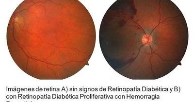 La Nación / Buscan prevenir pérdida de la visión por diabetes