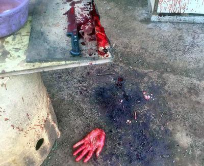 En ritual exorcista un sujeto se amputó la mano izquierda con un cuchillo de mesa
