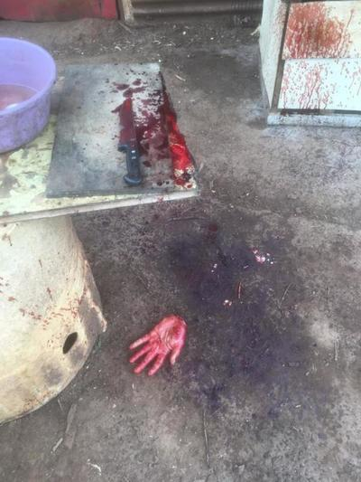 Sujeto se corta la mano y practica exorcismo, según familiares