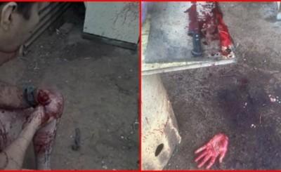 Hombre que practica rituales satánicos se cortó una de las manos
