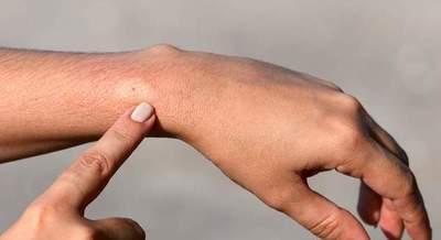 Niña de 11 años en grave estado tras sufrir picadura de un insecto