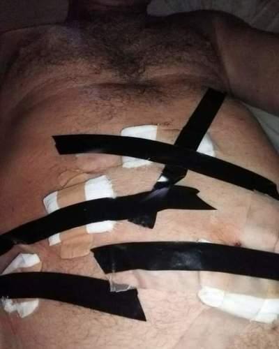 Usan cinta aislante para paciente en Hospital de Natalio – Prensa 5