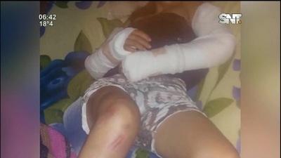Villa Ygatimi: Brutal agresión a una mujer