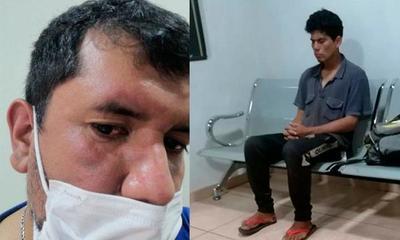 Hombre fue golpeado por un limpiavidrios