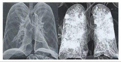 El pulmón de un pos-Covid grave es peor que el de un fumador, según médico