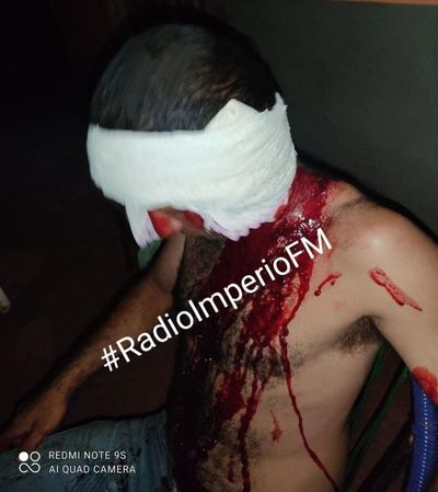 PJC: Por no comprar más cervezas, hombre fue herido en la cabeza por su compañero de tragos