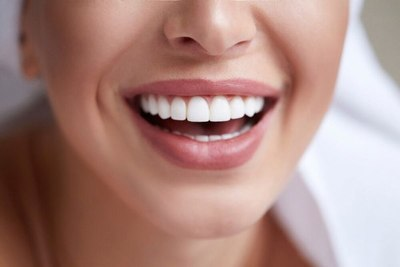 Cinco acciones que podés hacer todos los días para tener dientes más blancos