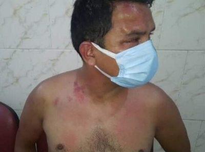 Fiscalía de Derechos Humanos investiga posible tortura a detenido por la Policía