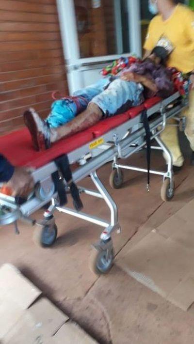 Motociclista perdió una pierna tras accidente de tránsito