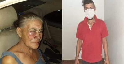 Hombre golpeó brutalmente a su propia madre