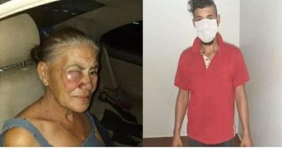 Un hombre golpeó a su madre y fue detenido – Prensa 5