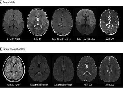 Algunos niños con un síndrome relacionado con la COVID desarrollan síntomas neurológicos – Prensa 5