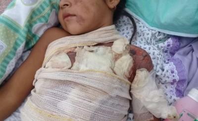 Niña de 6 años sufrió quemaduras y piden ayuda para tratamientos