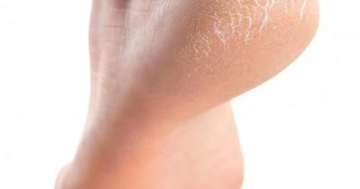 La Nación / Consejos sobre cómo mantener la piel de los pies saludable y evitar talones agrietados