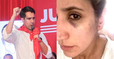 Fiscalía cajonea las dos denuncias contra el precandidato a intendente Juancito Pereira – Diario TNPRESS