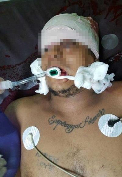 Joven baleado por sicarios muere en Hospital de Traumas de Asunción