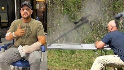 Se grabó cuando le explotó un rifle en la cara: vivió para contarlo