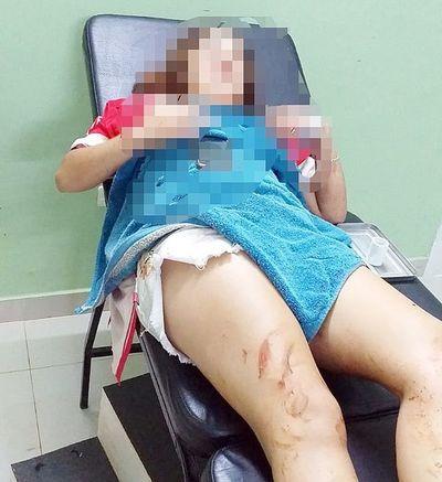 Imputan a fugitivo por intento de feminicidio