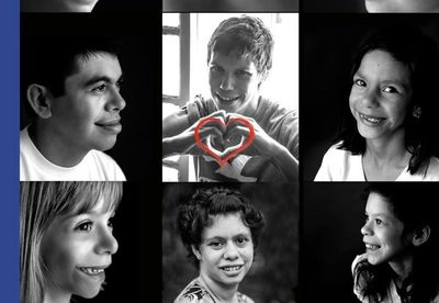 Síndrome de Williams: apoyo e interacción familiar son de gran ayuda