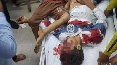 ¡Muy triste! Hay 27 niños entre el centenar de muertos en Gaza