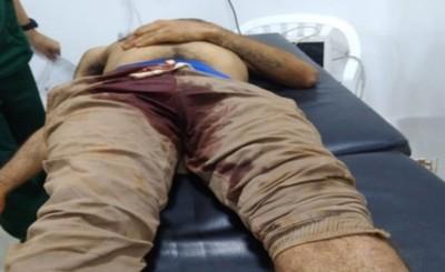 Joven muere desangrado tras sufrir un balazo