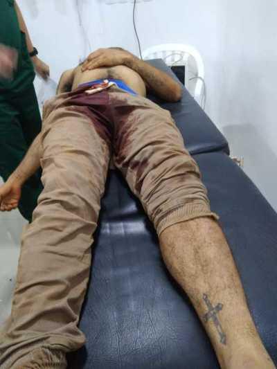 Joven muere tras ser baleado en el muslo durante gresca en asentamiento de CDE