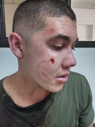 MRA: Militar es herido en extrañas circunstancias aparentemente por su camarada