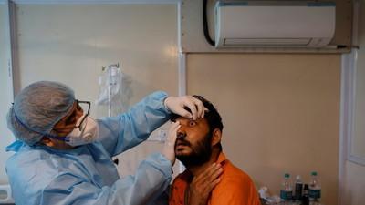 """Diagnostican el que podría ser el primer caso de """"hongo verde"""" en la India"""